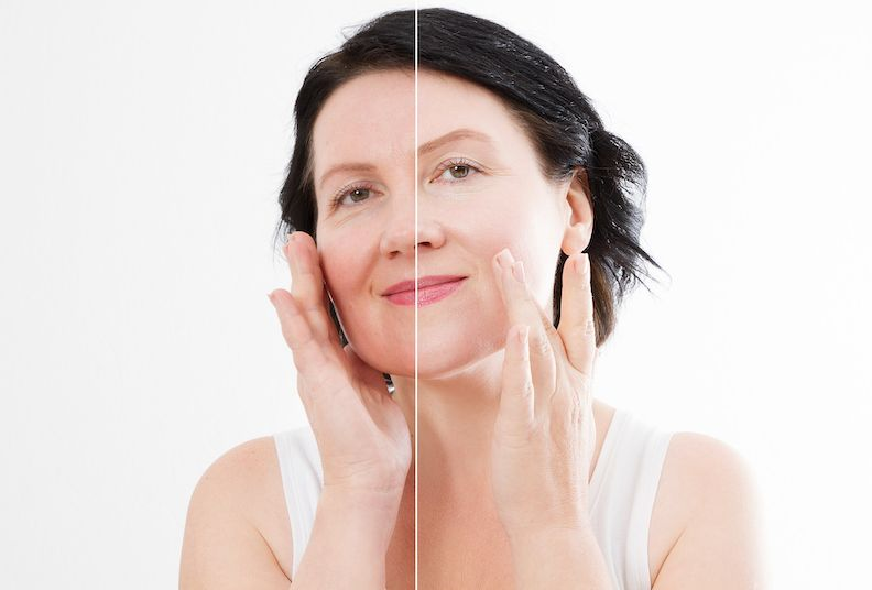 menopause-skin-affects