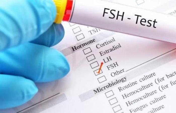 تحليل هرمون FSH يساعد في اكتشاف مشاكل الإنجاب