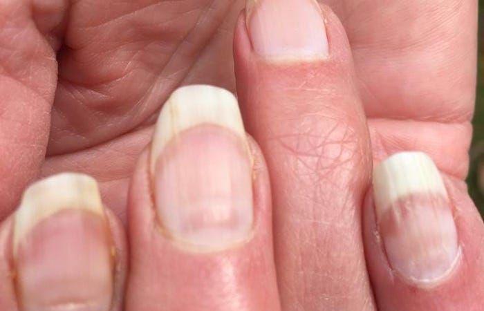 ظهور خطوط أفقية عبر الأظافر قد تكون علامة على الإصابة السابقة بكورونا