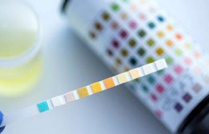 تحليل البول يمكن أن يتنبأ بخطورة فيروس كورونا.. و4 أشياء أخرى يخبرك بها