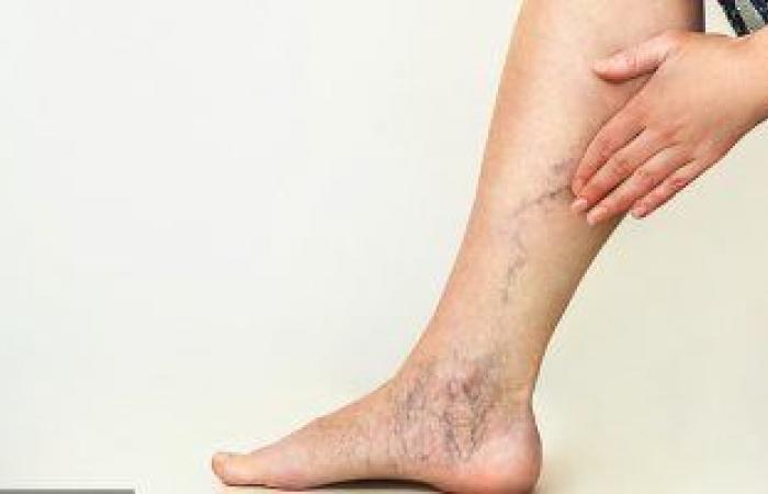 تعرف على أسباب إكزيما الدوالى بالساقين وأعراض الإصابة بها