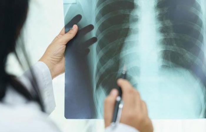كل ما تريد معرفته عن مرض الرئة الخلالى وعلاقته بفيروس كورونا؟