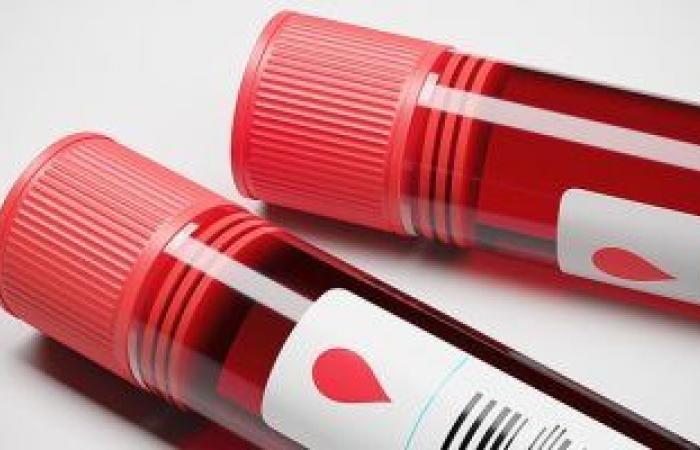 ما هو اختبار الزلال في الدم؟.. تعرف على الأمراض التي يكشف عنها