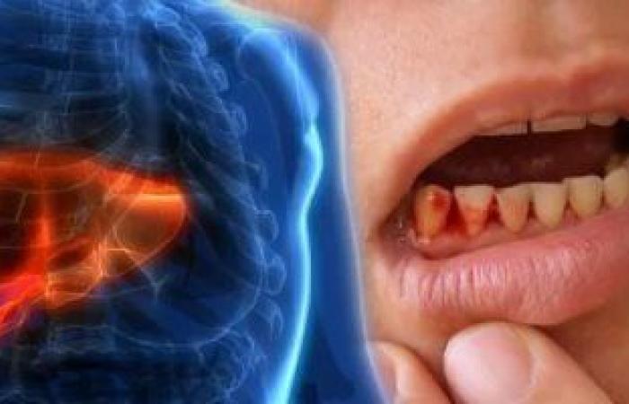 علاج نزيف اللثة المتكرر.. نظافة الفم المفتاح الأساسى للتغلب على البكتيريا