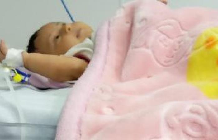 أسباب الالتهاب الرئوي الخلقي عند الأطفال حديثي الولادة