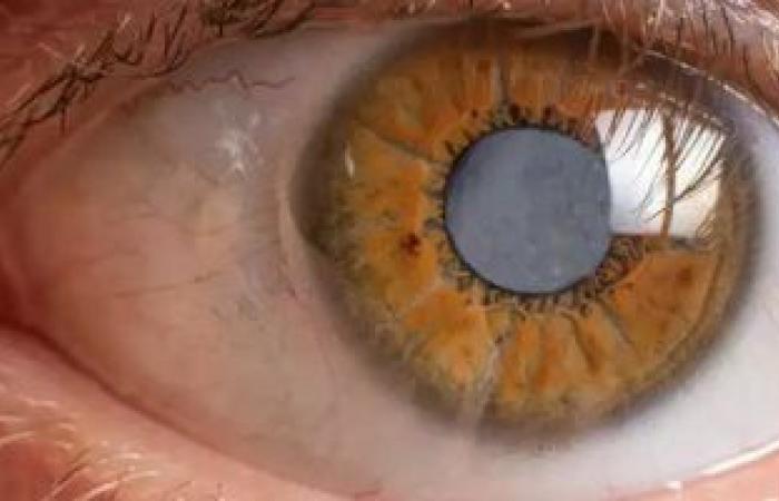 خد بالك.. علامات تظهر بالعين تؤكد إصابتك بالتهاب المفاصل